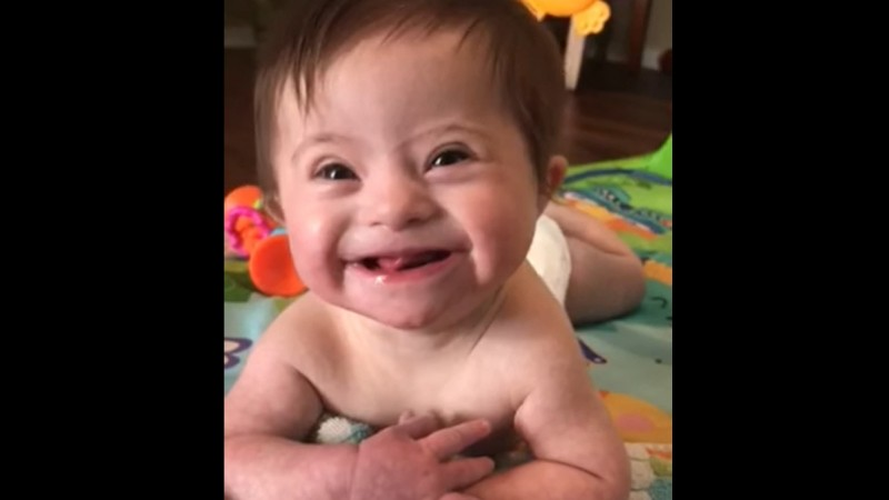 Viral video of adopted baby with Down syndrome highlights the gift of her life