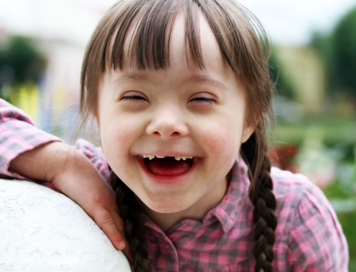 Babies with Down Syndrome Deserve Love, Not Eradication