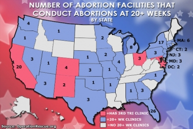 Disturbing trend: More abortion clinics moving into the late-term abortion business
